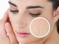 mencegah kulit kusam