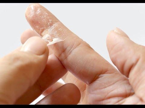 lem mengenai kulit